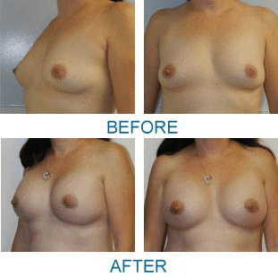 FYT_2559_BreastAugmentation