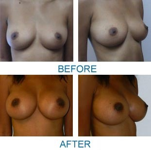 FYT_2594_Breast Augmentation