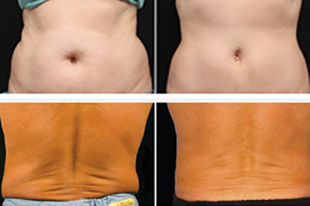 Freezefatforeversfl_ba_coolsculpting1