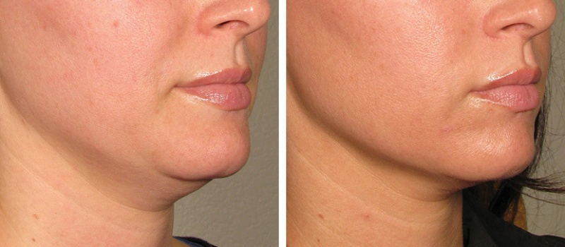 before_after_ultherapy_results_under-chin18