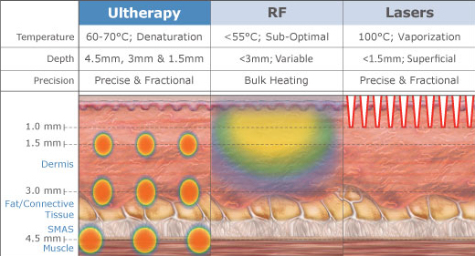 ultherapy-chart